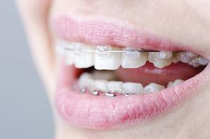 歯列矯正が必要な方